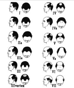 Mediziner können eine androgenetische Alopezie bei Männern sieben Stadien zuordnen. Stadium I entspricht dem Normalzustand, Stadium VII einer maximal ausgeprägten Glatze. Quelle: Journal der Deutschen Dermatologischen Gesellschaft, Band 9, Supplement 6, Oktober 2011, S. 4.