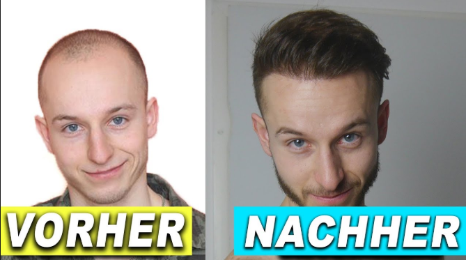 Radikal gegen kahl: vor und nach der Haartransplantation. Quelle: https://www.youtube.com/watch?v=Hod2Hnvh9q8.