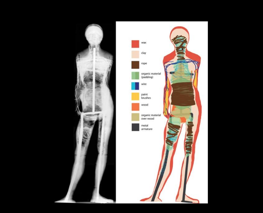 X-Ray-Aufnahme von der Kleine Vierzehnjährige Tänzerin